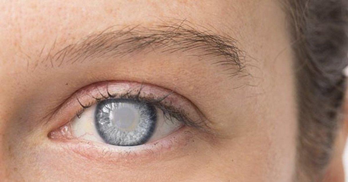 Каталин – эффективное средство в борьбе с катарактой